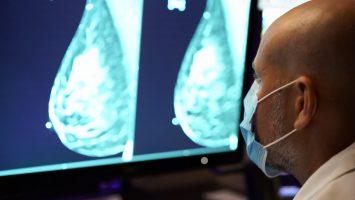 01-mammogram
